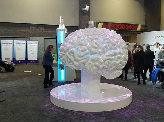 Mega brain at the Epilepsy Society Meeting